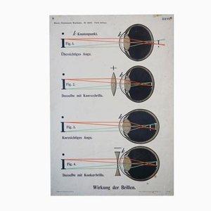 Effect of Spectacle Wandtafel, 1910er
