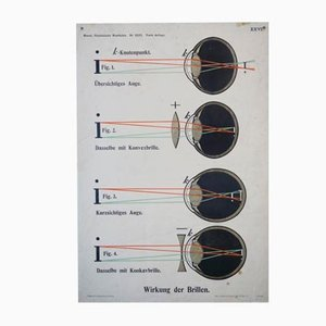 Effect of Spectacles Wall Chart, 1910s