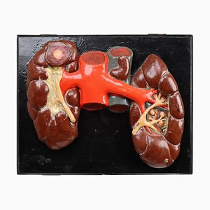 Czech Kidneys Anatomical Model Wood and Plaster on Metal Base, 1940s
