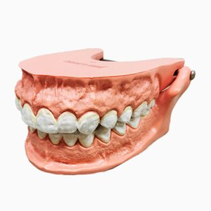 Vintage Anatomic Teeth Model, 1970s