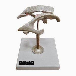 Medizinisches Vintage Ventrikuläres Brain System von Clay Adams