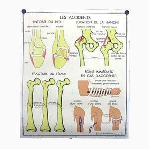 Poster fronte-retro illustrante ossa, articolazioni ed i loro infortuni, anni '50